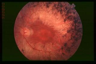 망막색소변성증 환자의 안구. 광수용체세포가 제 기능을 하지 못해 부분적으로 검게 변해 있다. - 위키미디어 제공